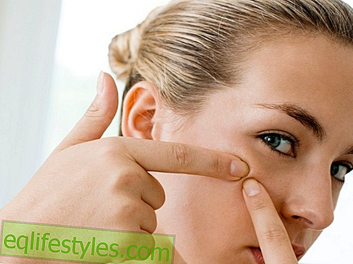 Still acne?  Tips from the dermatologist