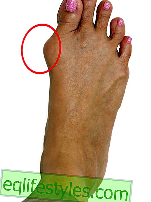 How women suffer from hallux valgus