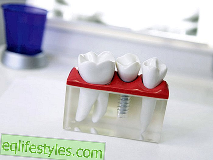 How safe are used dental implants?