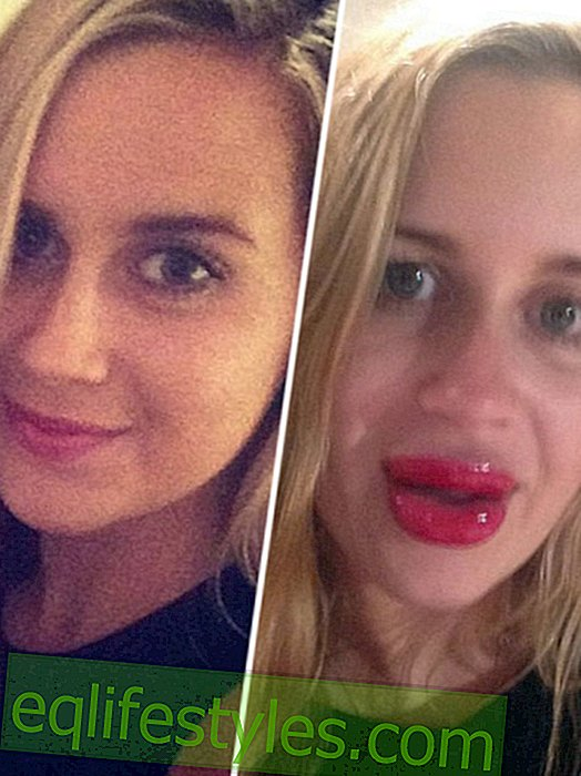 Full lips without surgery?  It went wrong with this woman!