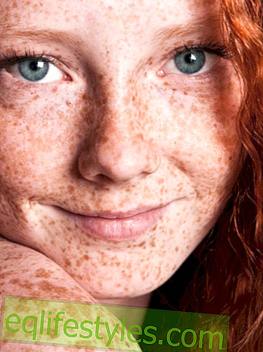 10 things that only women with freckles know
