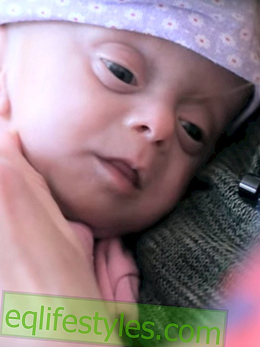 Touching story: The baby without a brain