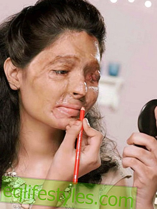 Acid victim makes beauty tutorials with message