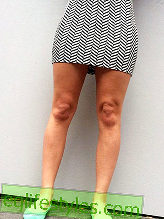 Photographer shows: This is what women's legs REALLY look like