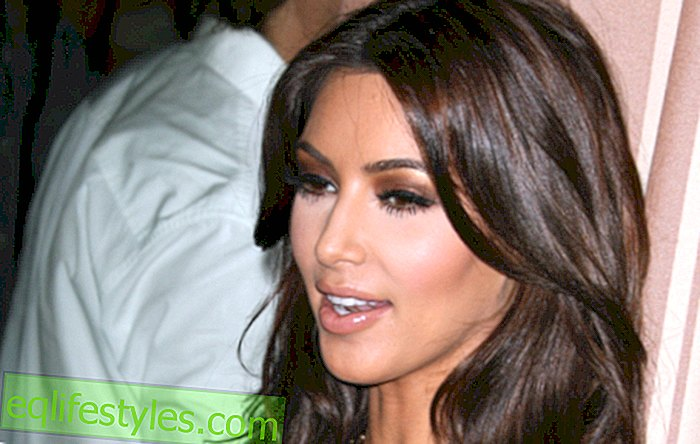 Life - Kim Kardashian has an incurable skin disease